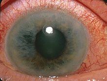 220px-acute_angle_closure-glaucoma