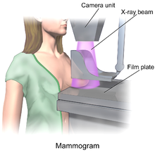 220px-blausen_0628_mammogram