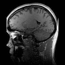 220px-structural_mri_animation-ogv