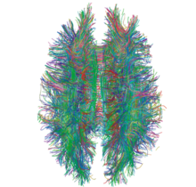 220px-white_matter_connections_obtained_with_mri_tractography