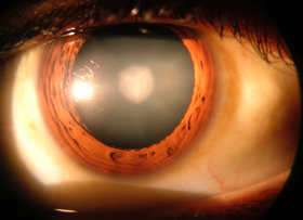 280px-cataract_in_human_eye