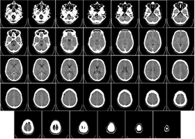 280px-computed_tomography_of_human_brain_-_large