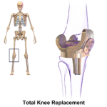 280px-knee_replacement
