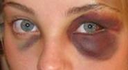 black_eye_2